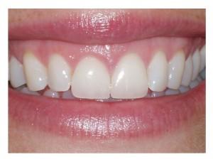 Meet your cosmetic dentist in Hiram, GA.
