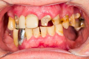 damaged, decayed teeth
